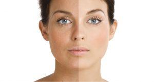 why pigmentation happens